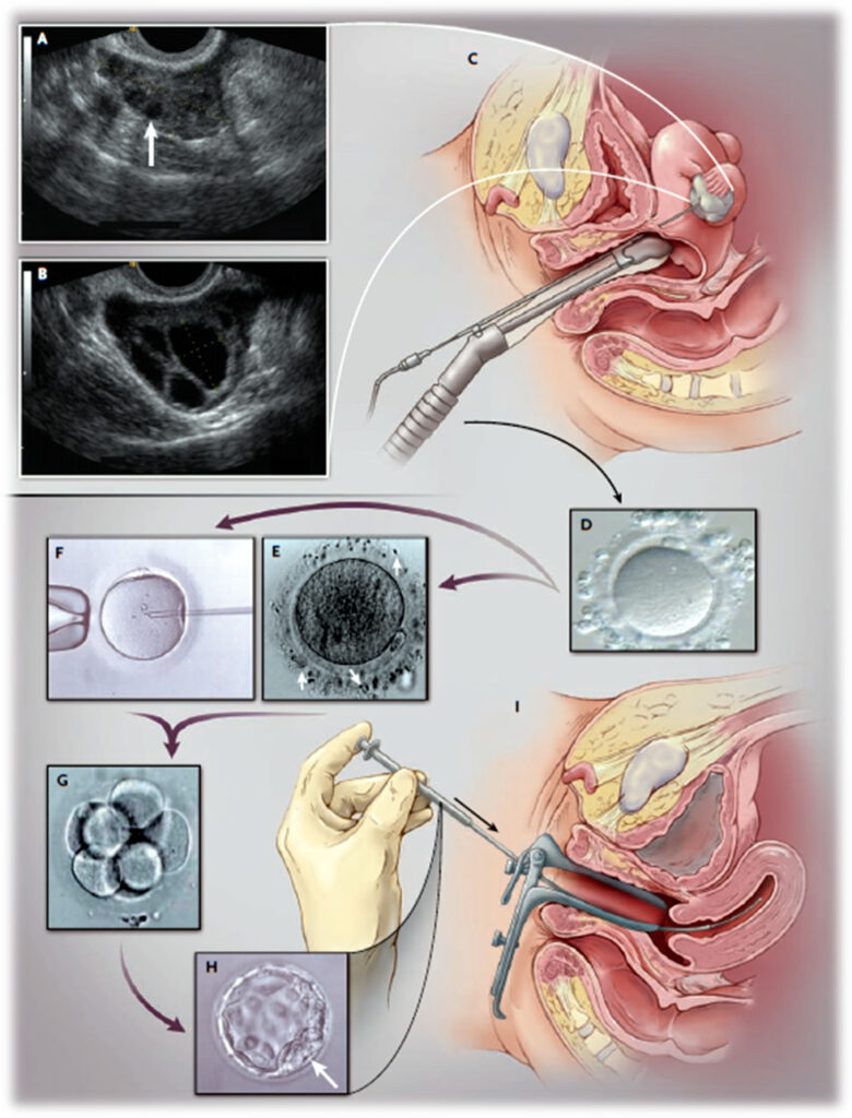 the ivf process (voorhis, 2007)