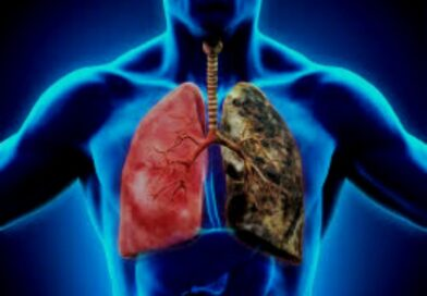Asthma- Lung Disease